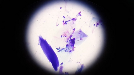 Microscopic View of Yeasty Tissue